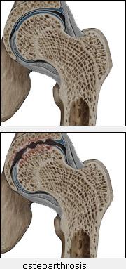 Болит левое плечо немеет левая кисть руки